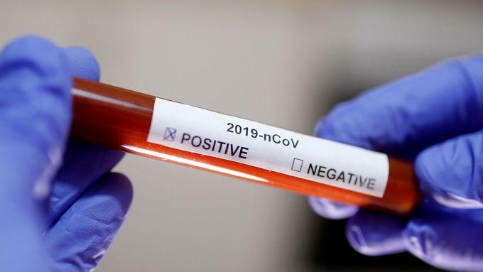 Dohrání ligy je ohrožené, tři hráči Karviné měli pozitivní test na koronavirus