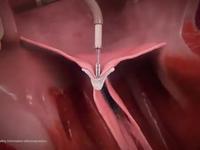 """Malá """"spona"""" umí vyléčit srdeční chlopeň. Obrovský pokrok, hlásí lékaři z USA"""