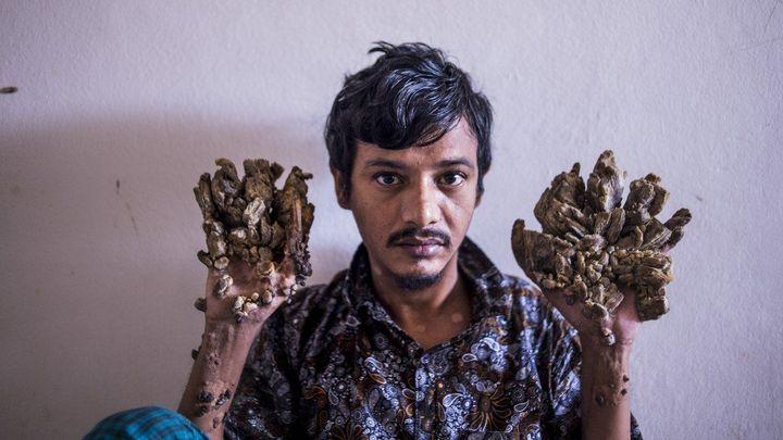 """""""Stromový muž"""" z Bangladéše už nesnese bolest rukou. Žádá o jejich amputaci"""