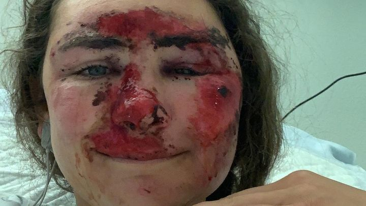 Šílený pád. Drsný karambol změnil tvář americké hvězdy k nepoznání, už je po operaci; Zdroj foto: Instagram