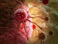 Velký průlom v léčbě rakoviny. Američtí vědci už ji dokážou najít pomocí nového krevního testu