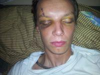 Případ zbitého motorkáře: Policie potřebuje tvrdou léčbu