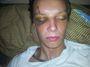 Případ zbitého motorkáře: Inspekce obvinila drsné hlídkaře