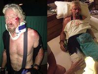 Magnát Richard Branson vyvázl z vážné nehody na kole. Myslel jsem, že umřu, svěřil se