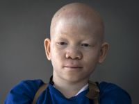 """""""Tichý zabiják"""" číhá na albíny v Tanzanii. Před rakovinou kůže ochrání krém, lidem ale chybí peníze"""