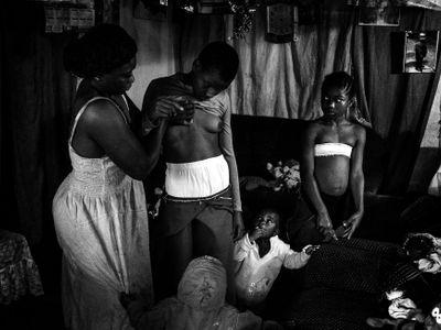 V Kamerunu žehlí dívkám prsa, aby nerostla. I tento příběh byl nominovaný na World Press Photo