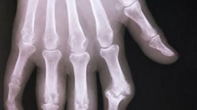Rentgenový snímek ukazuje kosti v ruce stižené artritidou. Jde o revmatické onemocnění kloubů.