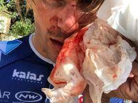 Francouzského cyklistu při tréninku zbili a pořezali