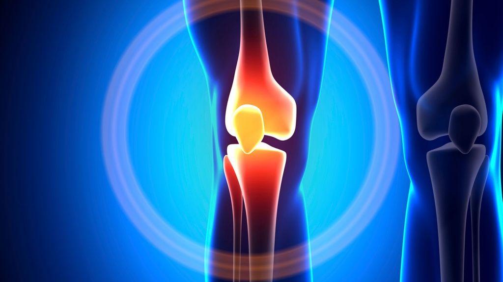 Bolest kloubů v koleni